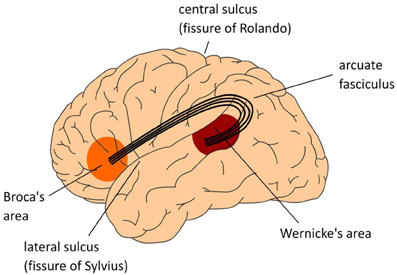 Broca and Wernicke are dead – it's time to rewrite the neurobiology of language